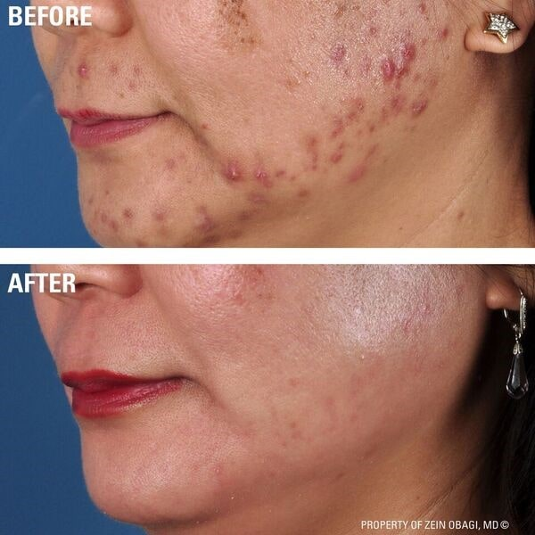 acne treatment 2-min