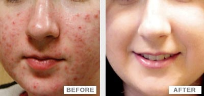 acne treatment-min