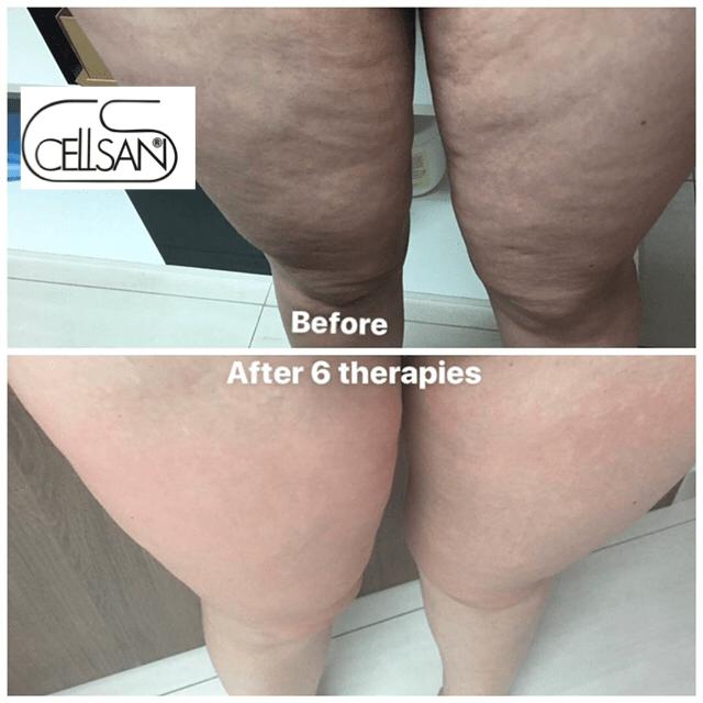 cellulite treatment-min