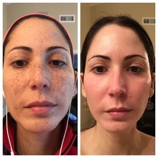 pigmentation treatment 1-min