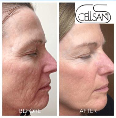 scars treatment-min