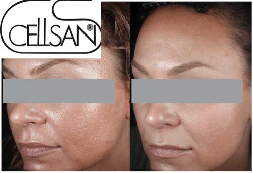 scars treatment1-min