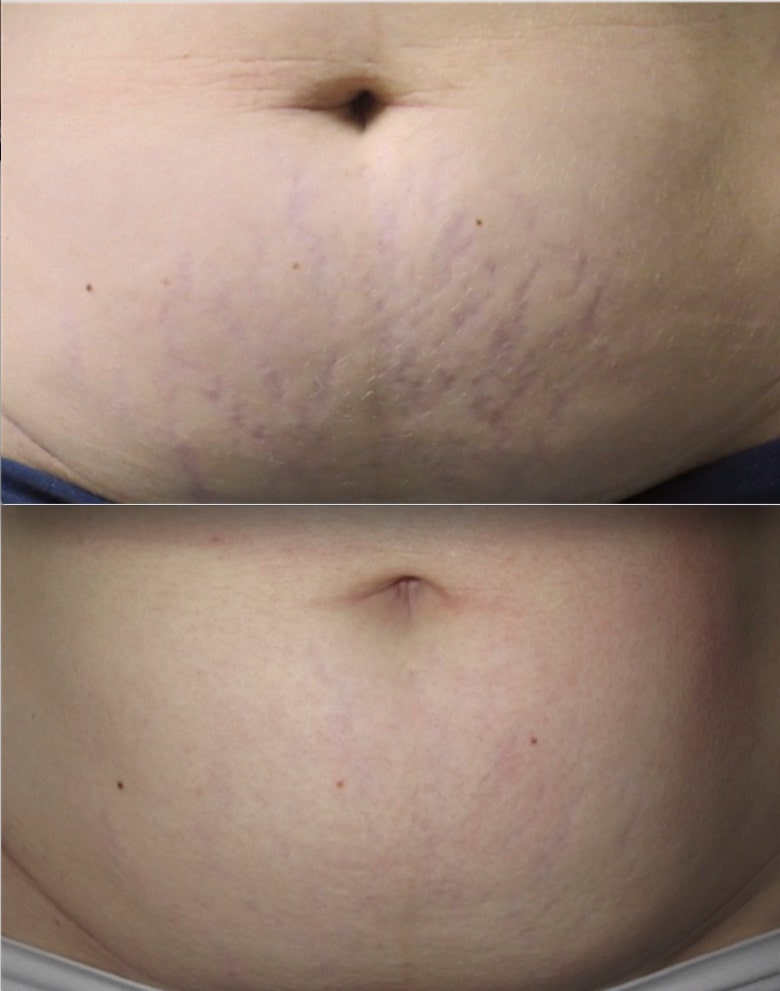 stretch marks treatment-min