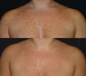 chest pigmentation