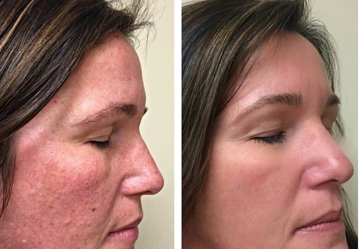 CLEARLIFT-before-and-after
